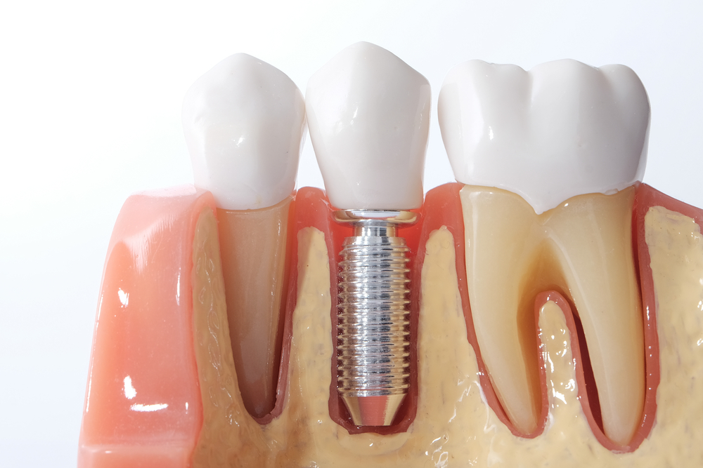 Periodontist And Oral Surgeon Differences | Les Parodontistes